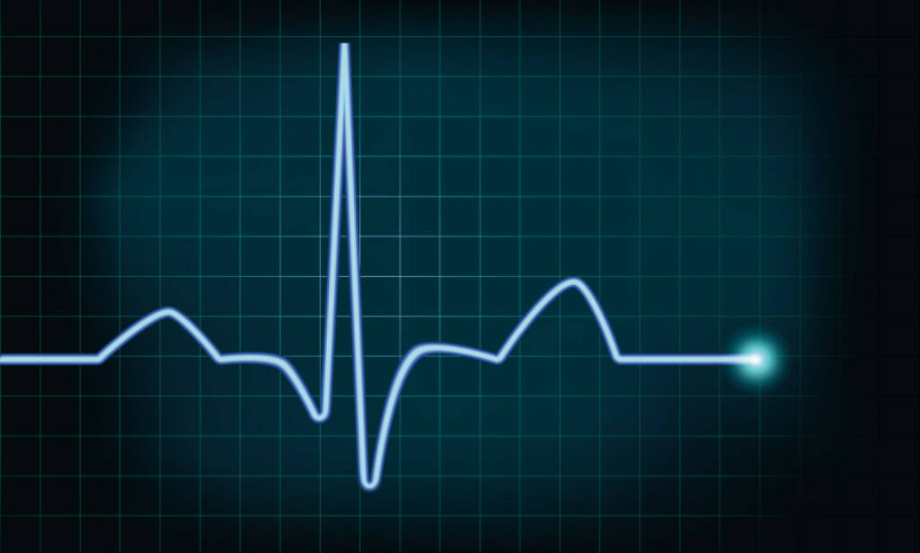Herzschlag, Leben, Lebenszeichen, Kurve, Amplitude, http://www.shutterstock.com/de/pic-140844907/stock-vector-detailed-illustration-of-of-a-heartbeat-curve-background-eps-vector-gradient-mesh-included.html , © www.shutterstock.com (17.01.2018)
