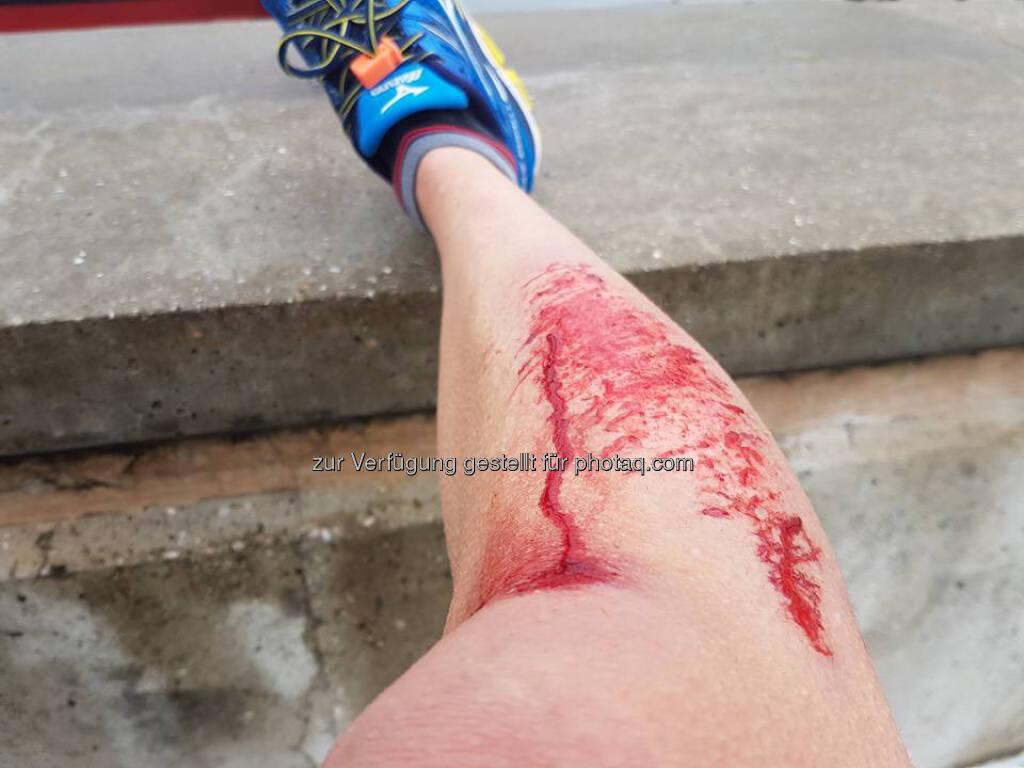 verletzt, Blut, Wunde, Blut, bluten, Schnitt (13.01.2017)